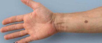 ایمپلنتی که با ایجاد لکه روی پوست خطر سرطان را هشدار میدهد