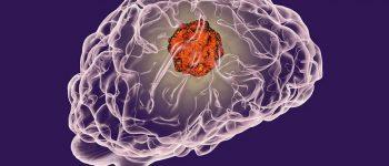 نمونه برداری غیر تهاجمی از مغز در راه است